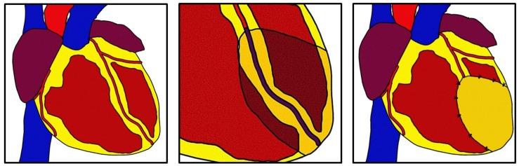 Promoting Cardiac Regeneration and Repair Using Acellular Biomaterials.